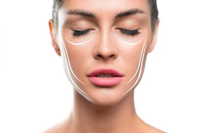 Você sabe o que é harmonização facial?